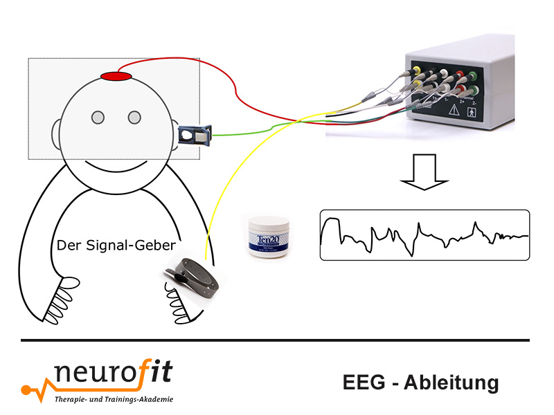 EEG Ableitung mit Neurofeedback Mobil